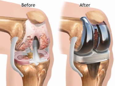 Hip-and-Knee-Replacement